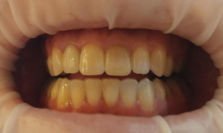 Internal-Bleaching-Before-Image