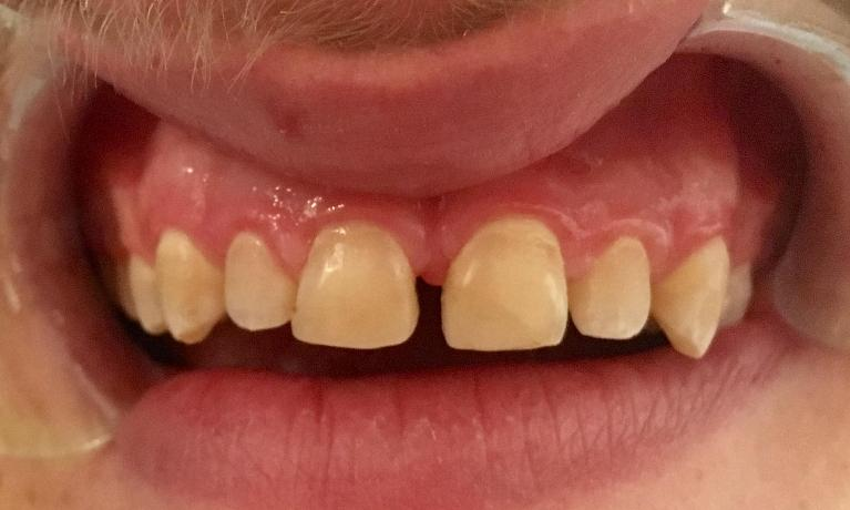 Resin-Fillings-Before-Image